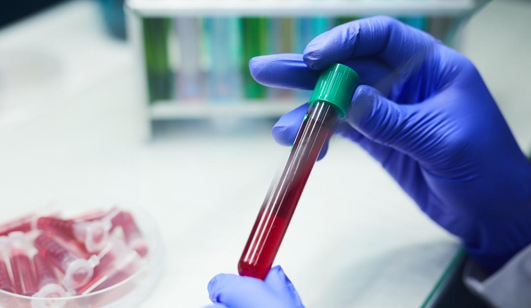 Parceria entre Binding Site e Enzipharma leva teste Freelite® ao Instituto Nacional de Câncer