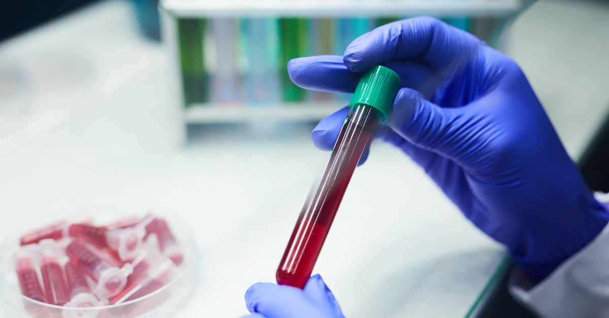 teste Freelite® ao Instituto Nacional de Câncer